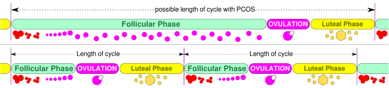 length of cycle PCOS